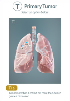 iPad screenshot from CSAT's lung cancer app